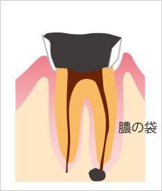 末期の虫歯