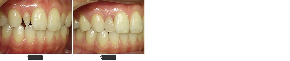 矮小歯を削らずにラミネートべニア修復